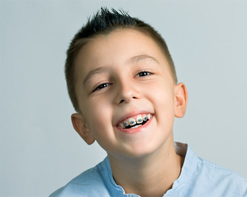 Early Orthodontic Treatment for Kids | Apple Dental Care